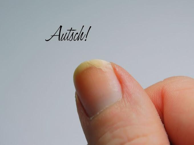 Nagel eingerissen: Mit Teefilter Methode eingerissene Fingernägel reparieren